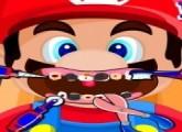 لعبة علاج اسنان سوبر ماريو من التسوس
